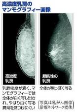 異常が見えにくい高濃度乳房…受診者に通知すべきでは?