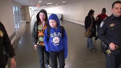 「アルビノ狩り」被害の子どもたち、治療のため訪米