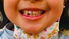 「あいうべ」で立派なすきっ歯に