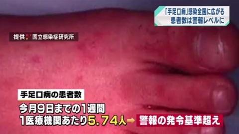 """「手足口病」感染 全国に広がる、""""患者数""""警報レベルに"""